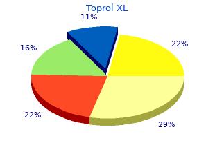 toprol xl 100mg lowest price